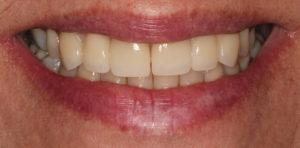 miami dental results photo 1