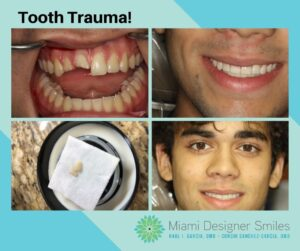 Copy of Miami Designer Smiles 24