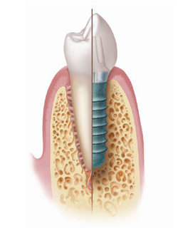 Dental Implants in Miami and Coral Gables, FL